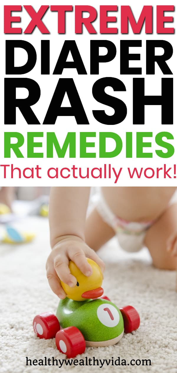 Extreme Diaper Rash Remedies That Actually Work