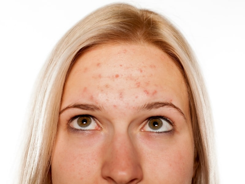 turmeric benefits for acne and acne scars
